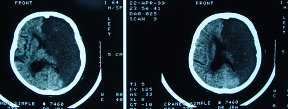 7 Tomografia Infarto Cerebral
